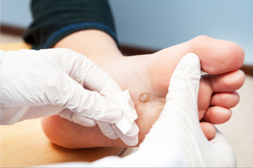 Podiatrist In Mountlake Terrace
