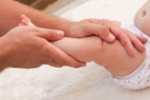 Clubfoot Treatment and Surgery in Arlington