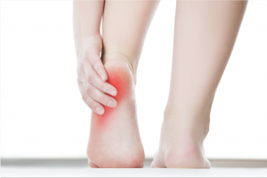 Burning Feet Syndrome in Bothell