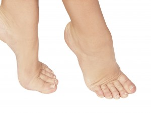 Foot Blister Treatment In Monroe