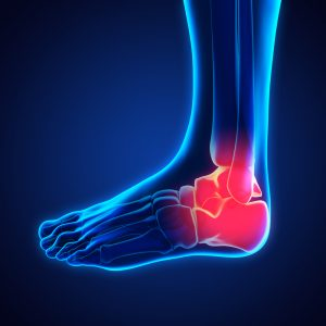 Broken Ankle Treatment And Surgery In Smokey Point