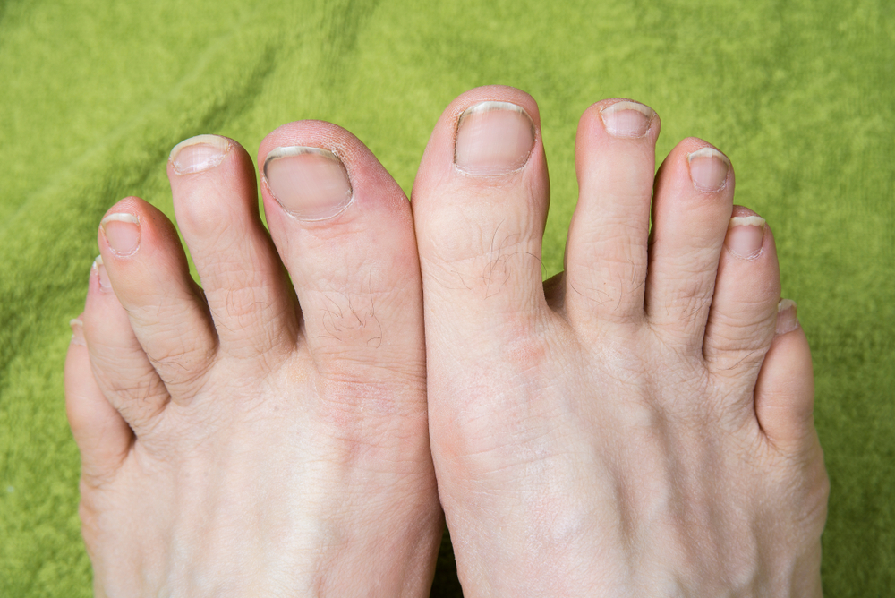 Podiatrist In Bothell