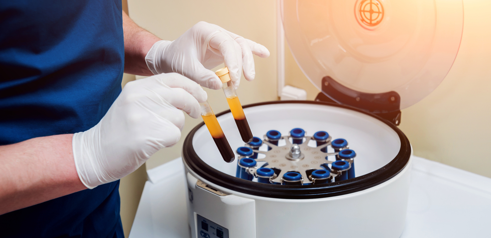 Harness The Power Of Platelet-Rich Plasma For Painful Foot Conditions