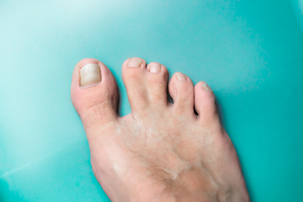 Are Webbed Toes An Inherited Trait?