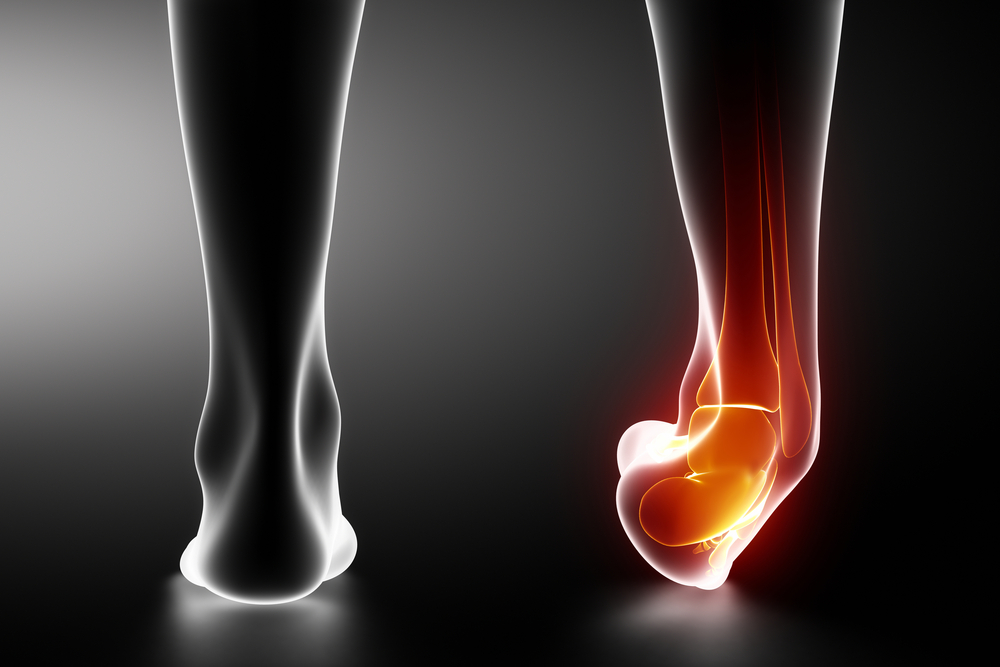 When Is It Time to See A Podiatrist For An Ankle Sprain?