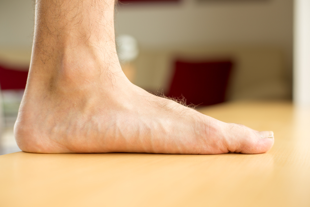 Common Causes And Treatment For Flat Feet