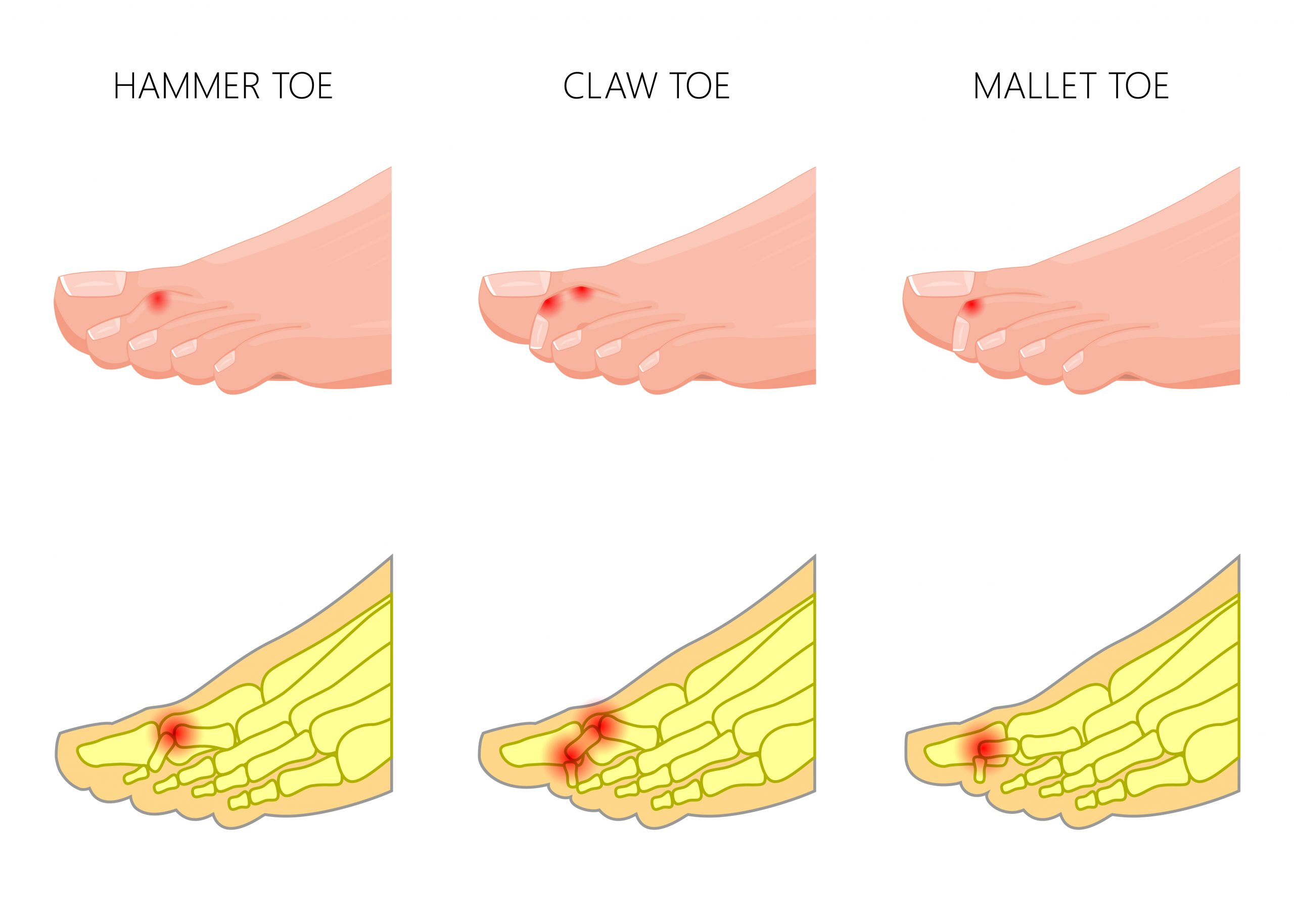 Understanding Hammer Toe Causes and How To Treat It