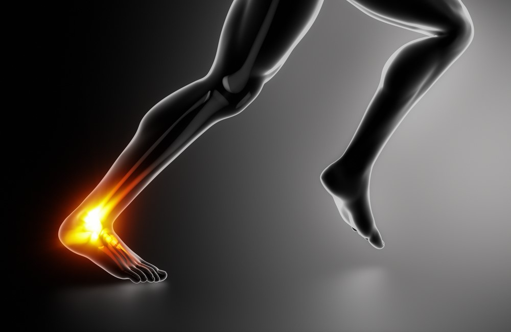 See A Trained Podiatrist For Help With Achilles Tendon Issues